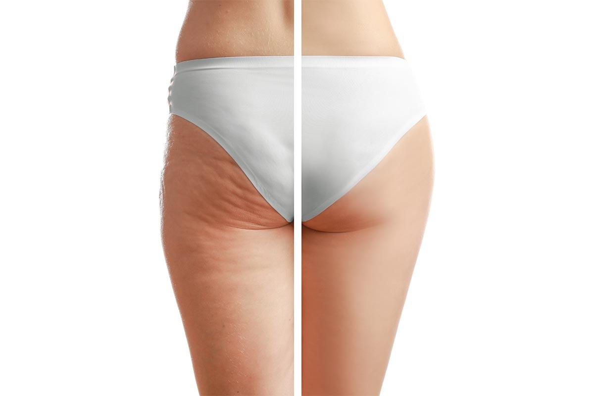 Nie wieder Cellulite! Anti-Cellulite-Kur als Onlinekurs